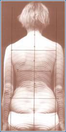 3-D-Wirbelsaeulenvermessung